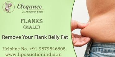Flanks Male Liposuction