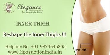 Inner Thighs Liposuction