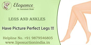 Legs and Ankles Liposuction