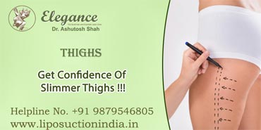 Outer Thighs Liposuction